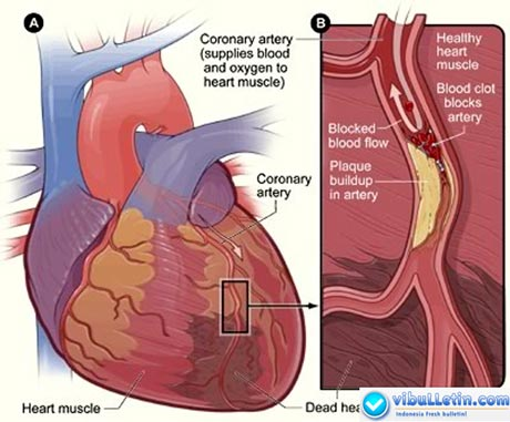 Heart Disease Cardiac Disease - Diagram